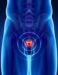 Prostataentzündung
